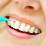 Key Healing Tips After Dental Implant Therapy